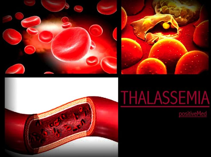 Thalassemia Symptoms & Treatments