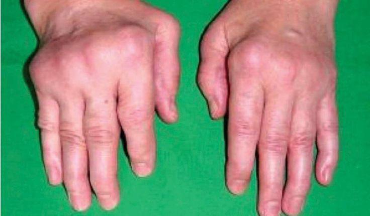 Artritis atau radang sendi