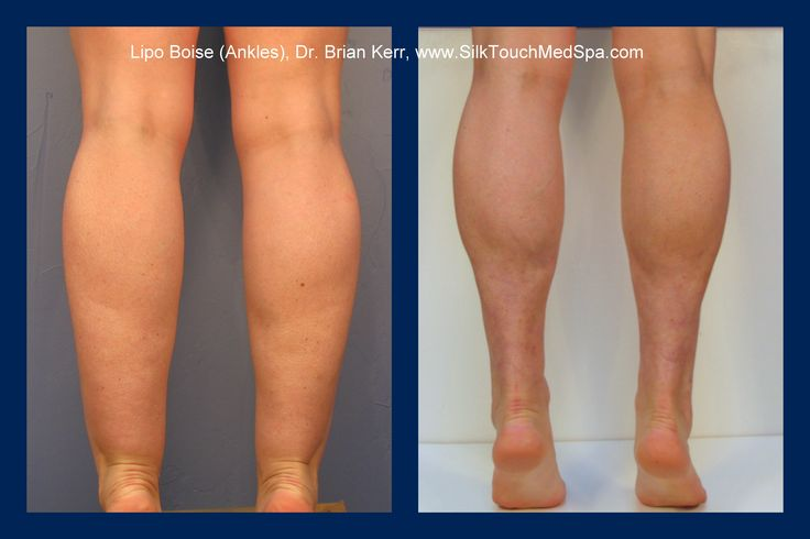 Ankle lipo- Hope for cankles!
