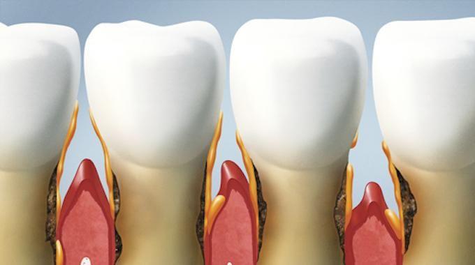 Une bonne partie des adultes souffrent au moins une fois dans leur vie d'une forme de maladie des gencivescomme la gingivite. Parmi les personnes diagnostiquées, seulement 6 % se font soigne...
