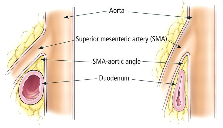 Superior Mesenteric Artery Syndrome - Occurs in patients with decreased mesenteric fat (low body weight, weight loss, burns, bed rest)