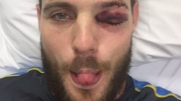 Mitchell McClenaghan will have surgery this week after fracturing his eye socket.