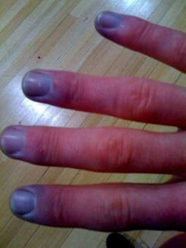 10 situations que subissent tous les gens qui ont la maladie de Raynaud → idem pour moi qui souffre d'un syndrome polyalgique idiopathique diffus (pour ne pas dire fibromyalgie).