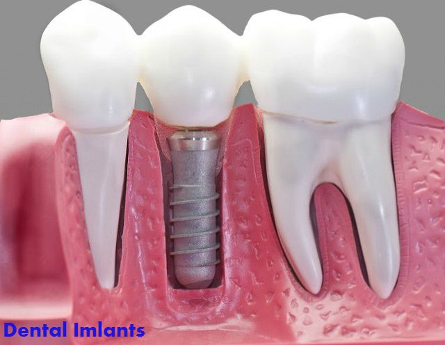 How Much Do Dental Implants Cost? Average Dental Implant Prices