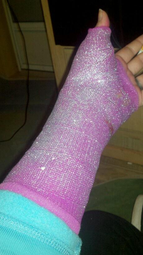 17 best images about splint decorating ideas on pinterest for Arm cast decoration ideas