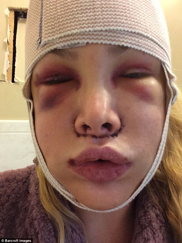 Recovery:Cassandra has had almost every cosmetic procedure possible, including numerous b...