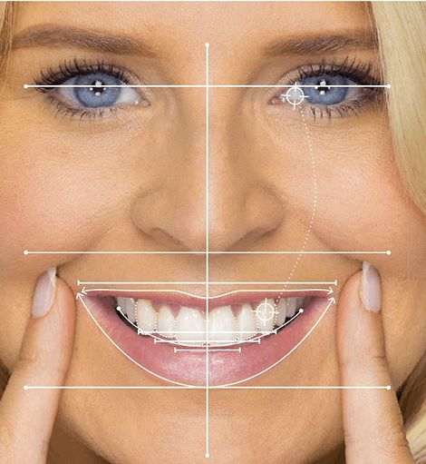 What makes a beautiful smile include: Symmetry of the teeth, particularly  the central teeth