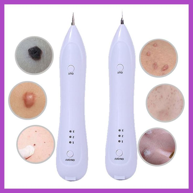 Electric Laser Face Wart Tag Tattoo Remaval Pen Skin Mole Dark Spot Remover Freckle Removal Machine For Salon Home Beauty Care
