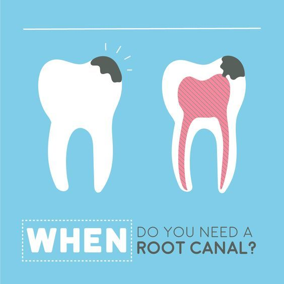 Once the pulp gets infected or dead, it must be treated instantly; if left untreated pus can accumulate at the tip of the root in the jawbone thus leading to the formation of an abscess.Painless root canal treatment in Aundh Pune, Best dentist in Pune,  Painless root canal treatment in Pune Aundh, Painless root canal treatment Aundh Pune,