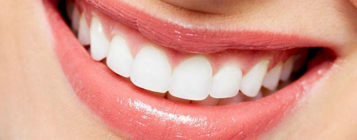 Lente de contato dental: Veja quanto custa e onde comprar!