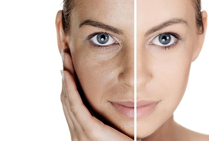 Cilt tonunu açmak ve yüzünüzü beyazlatmak istiyorsanız sizin için paylaştığımız pirinçle cilt beyazlatma maskelerini incelemenizi öneririz.