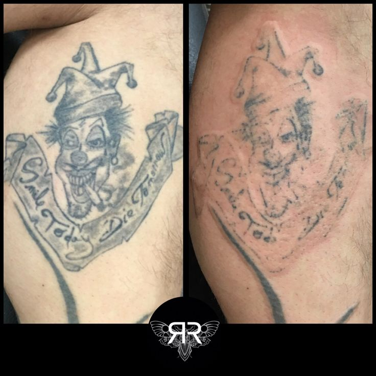 post laser tattoo removal