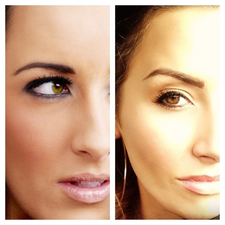 Denver Eyelid Specialist: 25+ Best Botox Brow Lift Ideas On Pinterest