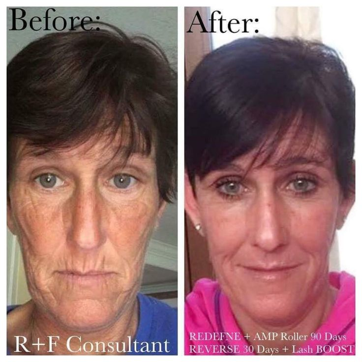 "REDEFINE, AMP ROLLER, REVERSE, & Lash boost - My fellow consultant Gerrie said: ""I can't explain how much these products have done for me. They have given me my self esteem back, given me a great business.""Gerrie also disclosed that she is 48 years YOUNG ? This before and after is truly amazing, in my opinion. Just look at her mouth area! Her results are spectacular and it's only been 90 days. I can't wait to see what her six month and year results are!Learn more…"