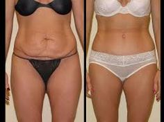 7 tummy tuck surgery recovery tips