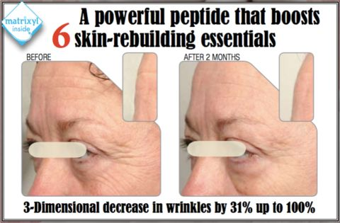 What makes TOUCH Hyaluronic acid natural anti-aging facial serum so effective? After more than 24 months of clinical studies, We combined the best formulae - Contains - Matrixyl® Synthe-6™ which is the newest addition to the famous Matrixyl® family of peptides. It acts as a surface wrinkle filler where it is needed particularly on the forehead and crow's feet.    In 25 days we will be launching our best Hyaluronic acid natural anti-aging facial serum at huge discounts with the added FREE…