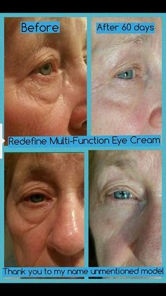 Whaaaaat?! Bye bye bags!!! This is a fellow R+F consultant's 76 year old mom! This is just one of soo many reasons for why Rodan + Fields Redefine Multi-Function Eye Cream is rated #1 on the market!! This famous eye cream minimizes the appearance of crow's-feet, helps reduce the appearance of both puffiness & dark under eye circles while leaving behind a brightened eye area. Top seller for sure!  ...Who needs eye cream?! Message me! ewilkins.myrandf.com