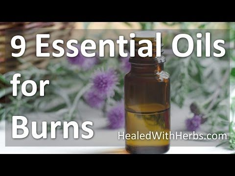 Essential Oils for Burns - and additional herbal remedies for burn relief. Find out how to treat your burn or burn scars with essential oils and herbal remedies that can really help!