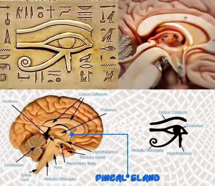 How to Detox Your Pineal Gland – Fluoride, Mercury, & Consciousness.  Is there a natural herb or treatment to detox from fluoride, mercury, and pineal gland calcification?