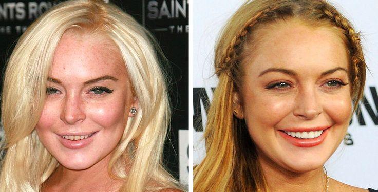 Celebrity teeth makeover - Lindsay Lohan ! Great work Lindsay
