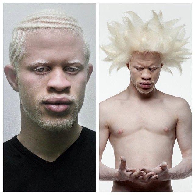 Svart Albino