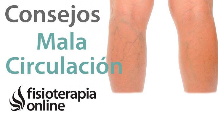 10 claves para el tratamiento de varices, mala circulación y piernas cansadas