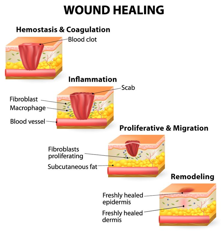"SurveySpeak: is wound healing a problem on DMTs? I am sick and tired of my current DMT; it seems to be affecting wound healing. What about you? #SurveySpeak #MSBlog ""Prof B (aka the MouseDoctor) was speaking to a person with MS who mentioned to him that since starting drug X they had noticed that minor cuts and abrasions were taking much longer to heal. The process of wound healing is complex and uses many of the same biological processes that the immune system uses to function. Therefore…"