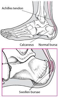 Achilles Tendon Bursitis - Bone, Joint, and Muscle Disorders - Merck Manuals Consumer Version