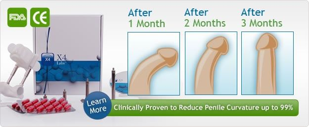 Penis Extender: FAQ, Answered Questions