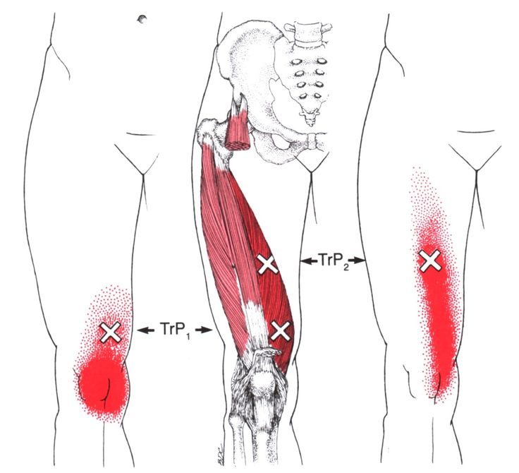 Vastus Medialis | The Trigger Point & Referred Pain Guide