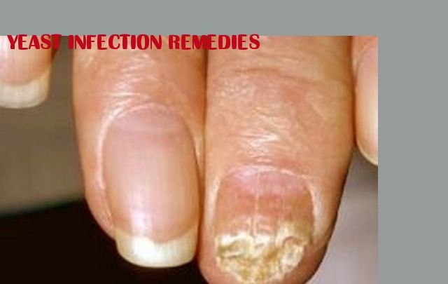 yeast infection remedies