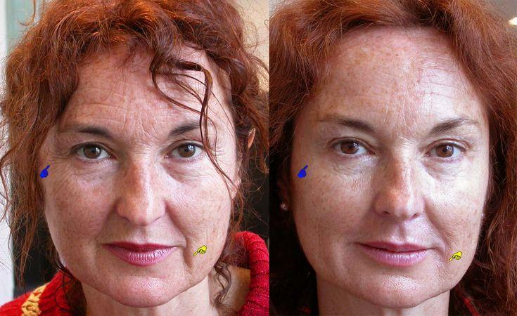 Mesolift ou Mesoterapia facial em: http://www.dentarmed.pt/pages/mesolift-mesoterapia-facial