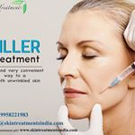 Filler can be used for everything from lip augmentation to wrinkle treatment to scar removalThis usually goes away over time There are many kinds of injectable fillers Visit us httpsgooglAirKNfor more detail or call us for appointment at wrinkletreatment lipaugmentation fillercost injectablefillers fillerclinic dermatologist nonsurgical southdelhi clinic skintreatments