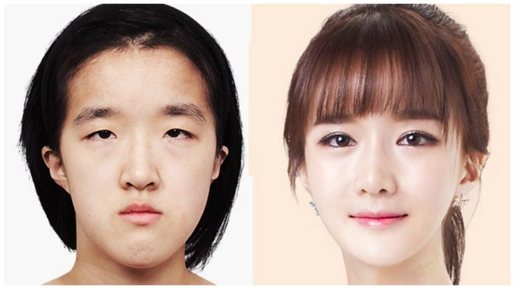 Check Out This Girl's Transformation On A Korean Plastic Surgery Show