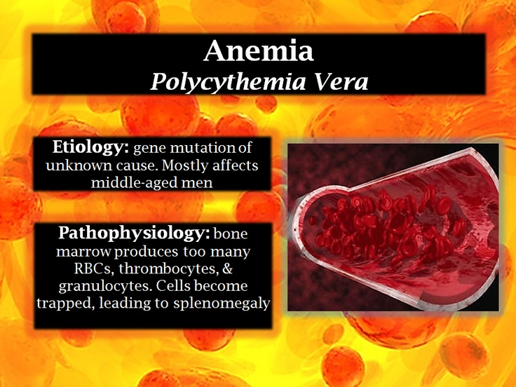 Polycythemia Vera is a myeloproliferative disorder.