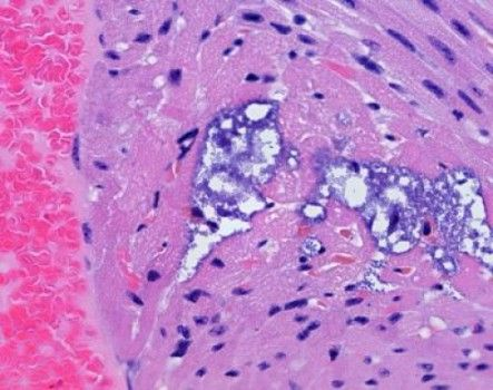 Study finds pneumonia bacteria cause lesions on the heart
