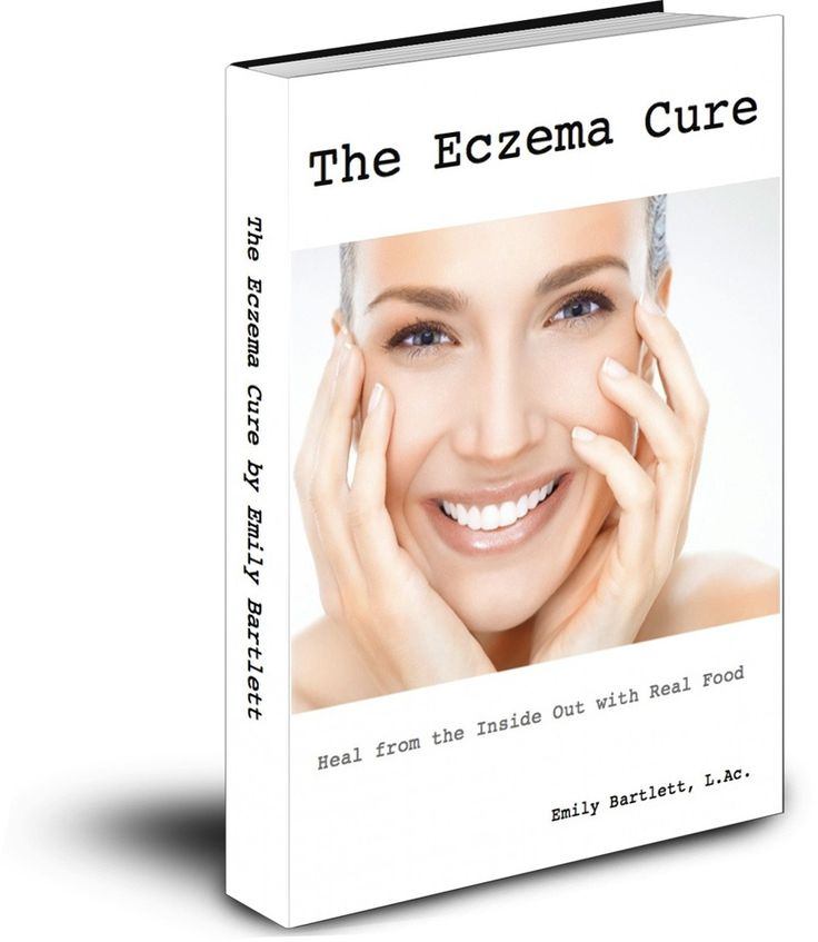 Book Review: The Eczema Cure buying this to see if it can help Audrey. i hope so!