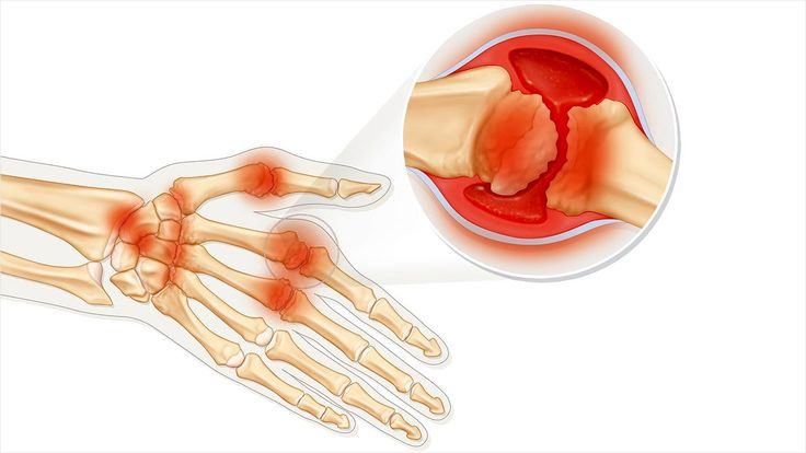 Rheumatoid arthritis is a progressive disease that usually affects joints first, causing symptoms such as pain and fatigue. Learn about treatments that can help halt the disease and more on EverydayHealth.com