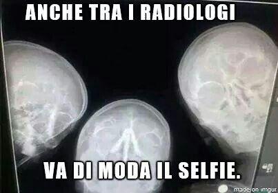 Anche tra radiologi va di moda i selfie