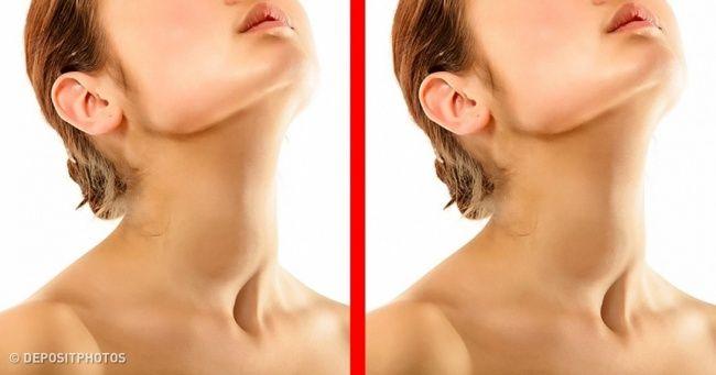 7Symptoms ofThyroid Disease You Mustn't Ignore