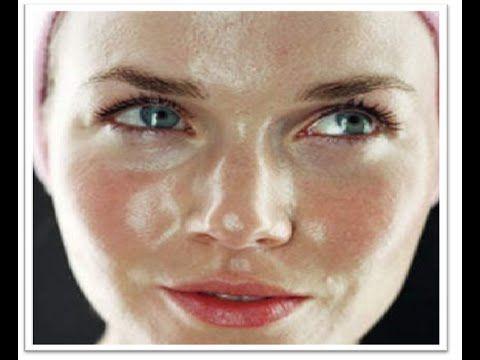 Penyebab Kulit Berminyak, kulit berminyak, wajah berminyak, Kulit merupakan suatu organ tubuh manusia yang sangat penting khususnya wanita. Terdapat tiga jen...