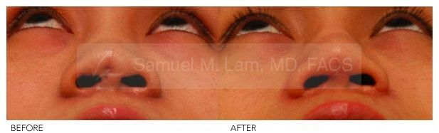 Asian Rhinoplasty Before And After Photo – Asian Rhinoplasty Before And After Ph