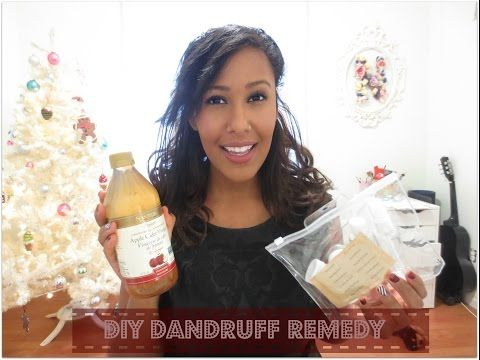 Natural Dandruff Remedy | Ms Nicole Fiona - YouTube