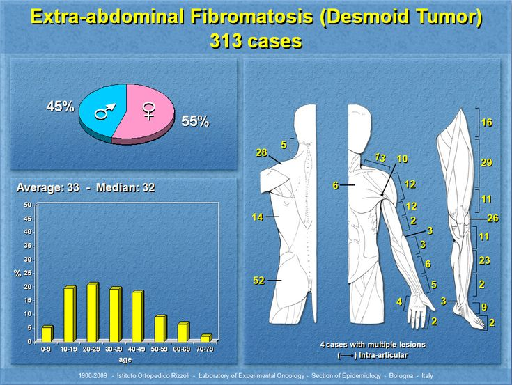 29 best images about Desmoid Tumor Awareness on Pinterest ...