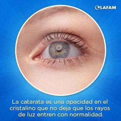 #Catarata #Visión