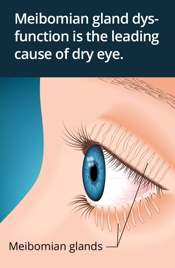 how to take care of dry eyes