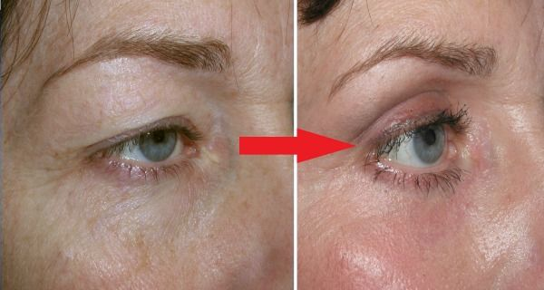 How to Tighten Loose Skin on Eyelids Naturally, Fast with Home Remedies! The Results Are Amazing!