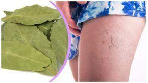 Seules certaines personnes savent que le laurier, en plus d'être utilisé dans la cuisine, peut également être très bénéfique pour notre santé. Les feuilles de laurier sont utilisées pour préparer une excellente huile médicinale qui possède beaucoup de...