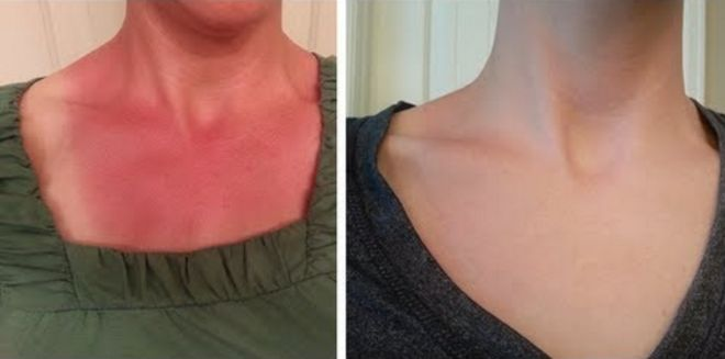 We all know the best way to deal with a sunburn is to avoid it altogether, but this is an incredible natural remedy to treat a bad burn.