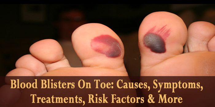 Blood Blisters On Toe: Causes, Symptoms, Treatments, Risk Factors & More  If you have blood blisters on toe then you should definitely try these treatments to get rid of blood blisters on feet. Know more at: https://www.bestfootcares.com/blisters/treat-blood-blisters-on-toe